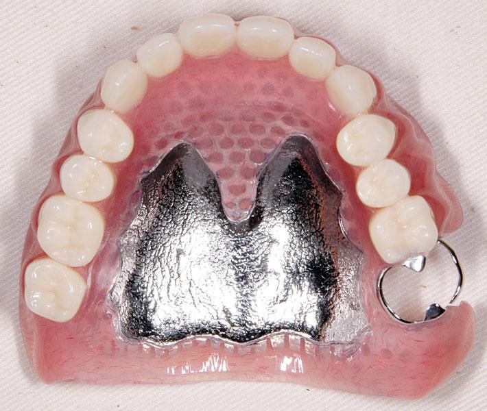 金属 床 義歯